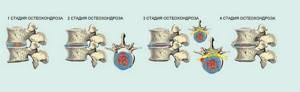 шейный остеохондроз симптомы и лечение операция