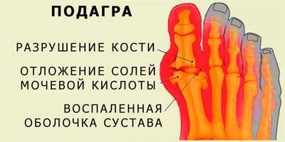 шейный остеохондроз симптомы и лечение йодом