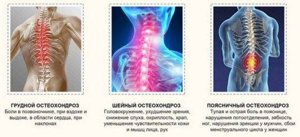 шейный остеохондроз симптомы лечение физиотерапия