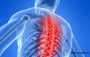шейный остеохондроз симптомы лечение физкультура
