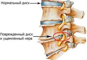 шейный остеохондроз симптомы лечение головная боль
