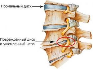 шейный остеохондроз симптомы лечение и аритмия