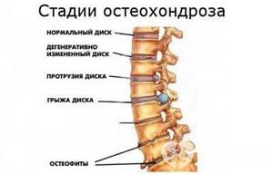 шейный остеохондроз симптомы лечение массаж