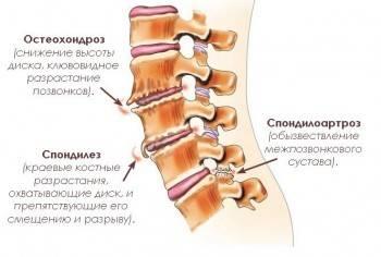 шейный остеохондроз симптомы лечение уколы мидокалм