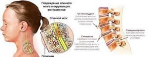 шейный спондилез симптомы и лечение народными средствами
