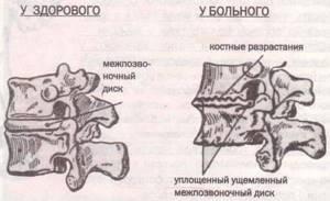 шейный спондилез симптомы лечение