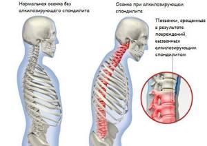 шейный спондилит симптомы лечение