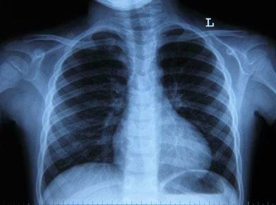 симптомы бронхита у взрослых без температуры лечение