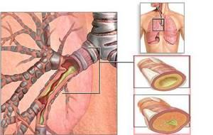 симптомы и лечение трахеобронхита