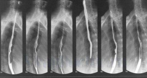 симптомы и лечение воспаления пищевода