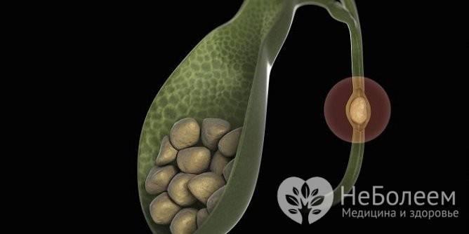 симптомы острого холецистита и его лечение