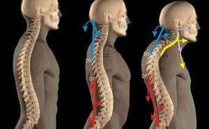 сколиоз шейного отдела симптомы и лечение