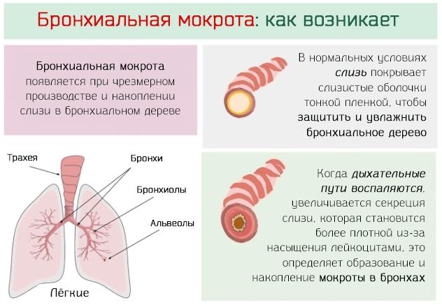 скопление мокроты в бронхах симптомы и лечение