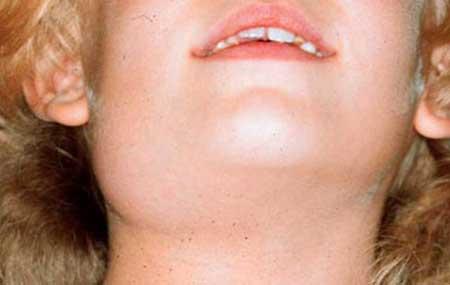 слюнные железы воспаление симптомы лечение