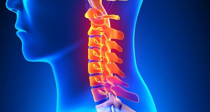 спондилез шейного отдела симптомы и лечение