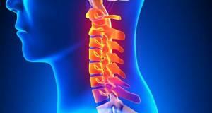 спондилез шейного отдела симптомы лечение