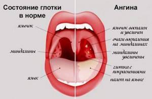 стафилококковая ангина симптомы лечение
