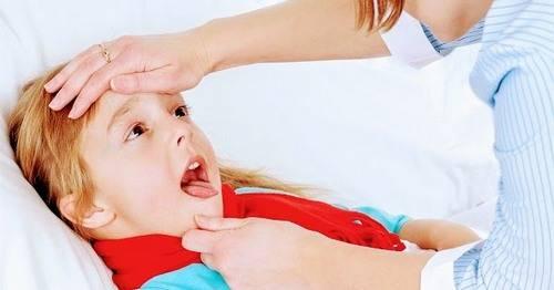 стоматитная ангина симптомы лечение
