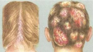 стригущий лишай лечение симптомы