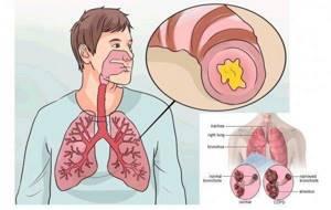 трахеидный бронхит симптомы и лечение