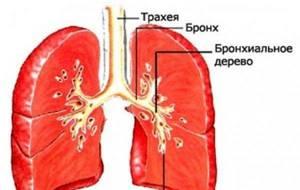трахеит бронхит симптомы лечение препараты