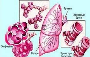 трахеит и трахеобронхит симптомы и лечение