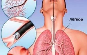 трахейный бронхит симптомы лечение