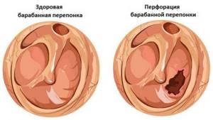 травма барабанной перепонки симптомы лечение