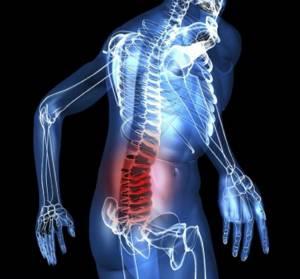 травма копчика симптомы лечение