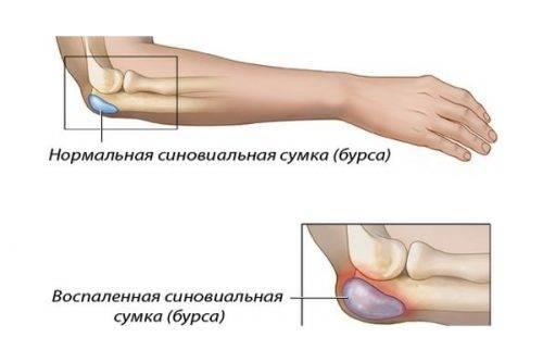 травматический бурсит локтевого сустава симптомы и лечение