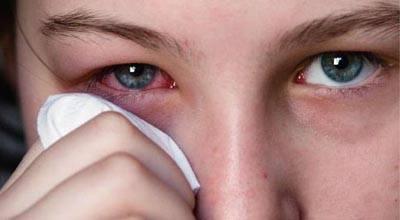 травматический конъюнктивит симптомы и лечение