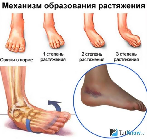 травмы голеностопа симптомы лечение