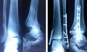 травмы лодыжки симптомы и лечение