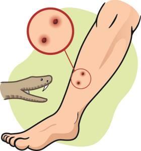 укус гадюки симптомы лечение