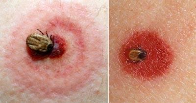 укус клеща симптомы у человека лечение дома
