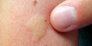 укус малярийного комара симптомы лечение