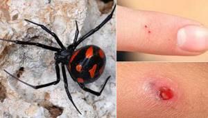 укус паука симптомы лечение