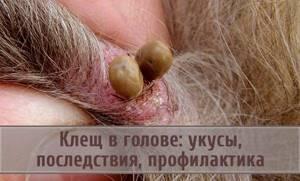 укусил клещ в голову симптомы и лечение