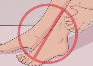укусы блох симптомы лечение