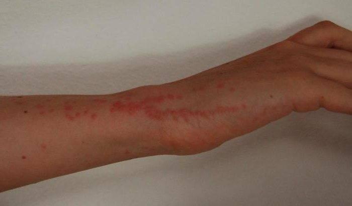 укусы клопов на человеке симптомы и лечение