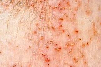 укусы насекомых симптомы и лечение