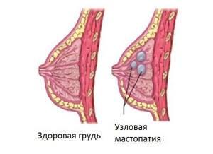 узловая мастопатия молочной железы симптомы и лечение