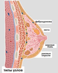 узлы в молочной железе лечение симптомы