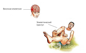 височная эпилепсия симптомы лечение