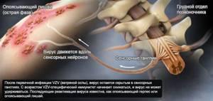 внутренний лишай симптомы лечение