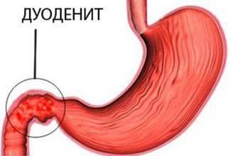 воспаление дпк симптомы и лечение