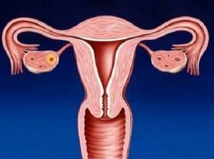 воспаление эндометрия симптомы лечение