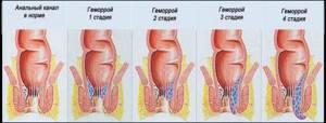 воспаление геморроя симптомы и лечение
