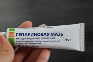 воспаление геморроя симптомы лечение