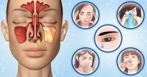 воспаление горла симптомы лечение